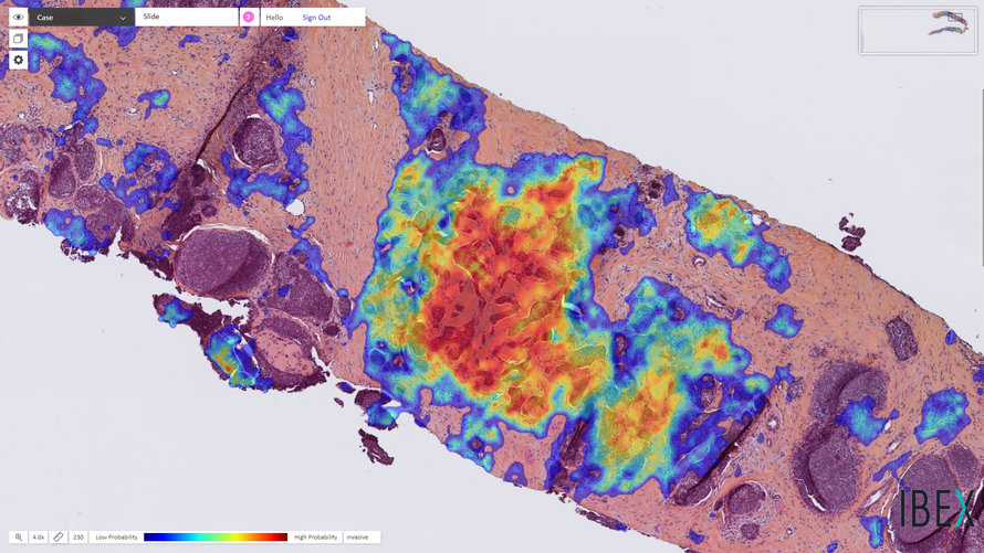 Breast cancer detected by Ibex's Galen Breast AI solution (the tumor is marked with a heatmap)